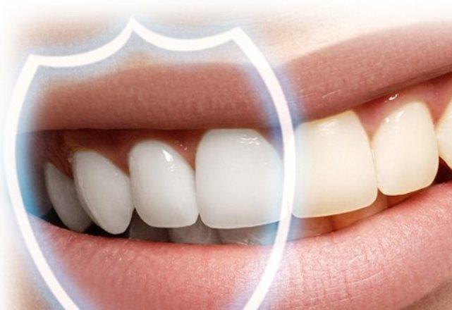 Ученые разработали наночастицы, которые могут защитить от разрушения зубной эмали