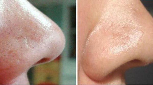 Как избавиться от черных точек на носу с помощью соды в домашних условиях