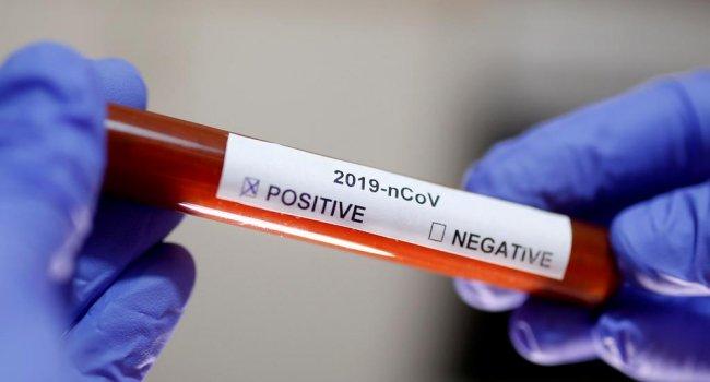 Женщина и четверо ее детей пили мочу в надежде защититься от коронавируса