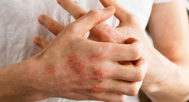 Ученые предложили новый способ лечения атопического дерматита